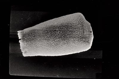 <i><i>Eisenackitina elongata</i> | Eisenackitina cf. elongata</i><br />Kolka 54 borehole, 282.20 m, Paadla Stage ( 754-731)