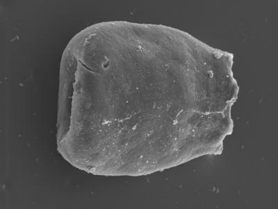 <i><i>Eisenackitina inanulifera</i> | Eisenackitina inanulifera?</i><br />Kolka 54 borehole, 596.90 m, Adavere Stage ( 754-420)