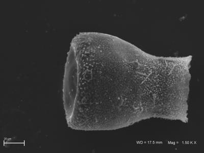 <i><i>Eisenackitina</i>   Eisenackitina aff. clunensis</i><br />Ventspils D-3 borehole, 334.40 m, Kaugatuma Stage ( 754-1805)