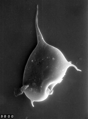 Veryhachium dumontii Vanguestaine, 1974, TUG 1528-51