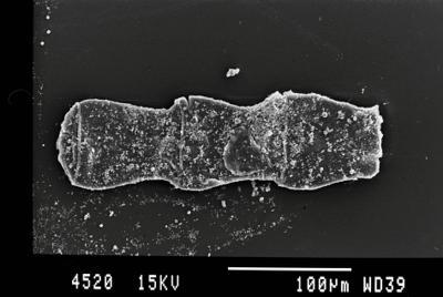 <i><i>Cingulochitina gorstyensis</i> | Cingulochitina cf. gorstyensis</i><br />Gussev 1 borehole, Kaliningrad oblast, 1467.80 m, Rootsiküla Stage ( 754-21)