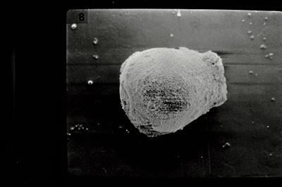 <i><i>Eisenackitina oviformis</i></i><br />Kolka 54 borehole, 276.15 m, Kuressaare Stage ( 754-588)