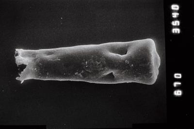 <i><i>Conochitina pachycephala</i></i><br />Kihnu 526 borehole, 127.30 m, Jaagarahu Stage ( 754-802)