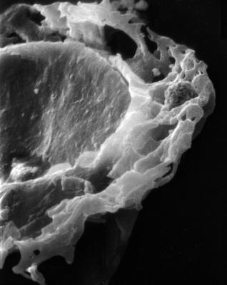 <i><i>Anthochitina primula</i></i><br />Viki borehole, 140.10 m, Adavere Stage ( 272-29)