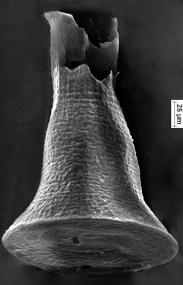 <i><i>Chitinozoa</i> | Cyathochitina cf. campanulaeformis (Eisenack, 1931)</i><br />Ikla borehole, 310.60 m, Adavere Stage ( 350-4)