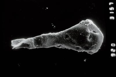 <i><i>Ancyrochitina</i> | Ancyrochitina cf. convexa</i><br />Ventspils D-3 borehole, 856.00 m, Raikküla Stage ( 754-939)