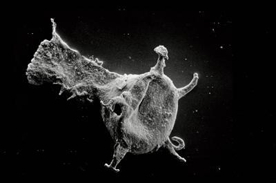 <i><i>Ancyrochitina tomentosa</i> | Ancyrochitina cf. tomentosa</i><br />Ruhnu 500 borehole, 404.20 m, Jaagarahu Stage ( 754-542)