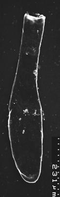 <i><i>Chitinozoa</i>   Lagenochitina destombesii Elaouad-Debbaj</i><br />Varangu stratotype outcrop,  m, Tremadocian ( 1537-10)