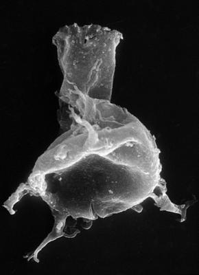 <i><i>Chitinozoa</i> | Ancyrochitina cf. clathrospinosa Eisenack, 1968</i><br />Pulli 1 borehole, 13.20 m, Jaani Stage ( 272-40)