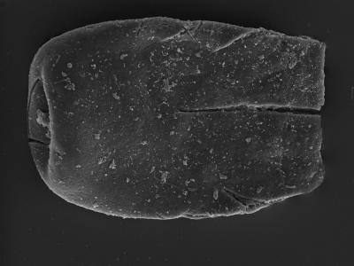 <i><i>Eisenackitina dolioliformis</i></i><br />Kolka 54 borehole, 596.90 m, Adavere Stage ( 754-1298)