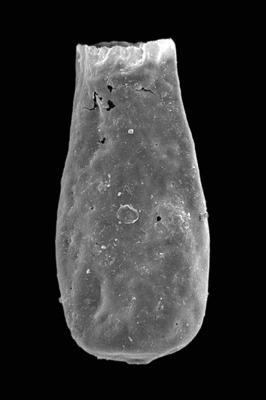 <i><i>Bursachitina nestorae</i></i><br />Ventspils D-3 borehole, 827.60 m, Telychian ( 423-12)