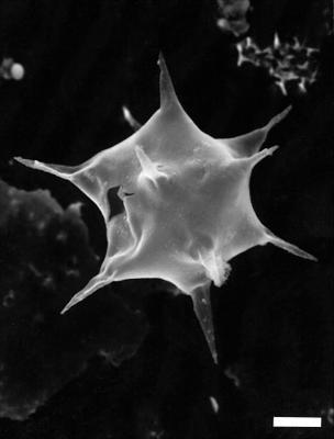 Goniosphaeridium splendens (Paris et Deunff), Turner, 1984, GIT 344-126