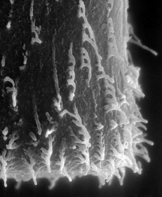<i><i>Hercochitina</i>   Hercochitina aff. spinetum Melchin et Legault, 1985</i><br />Ristna cliff,  m, Keila Stage ( 545-1)