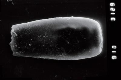 <i><i>Conochitina</i>   Conochitina sp. 6</i><br />Ohesaare borehole, 356.26 m, Adavere Stage ( 754-923)