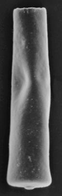 <i><i>Conochitina claviformis</i></i><br />Ohesaare borehole, 174.40 m, Jaagarahu Stage ( 220-56)