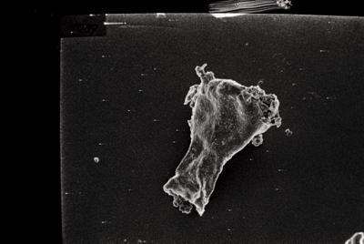 <i><i>Ancyrochitina primitiva</i> | Ancyrochitina aff. primitiva</i><br />Ruhnu 500 borehole, 413.20 m, Jaagarahu Stage ( 754-120)