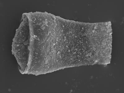 <i><i>Cingulochitina crassa</i> | Cingulochitina cf. crassa?</i><br />Kolka 54 borehole, 492.60 m, Jaagarahu Stage ( 754-449)