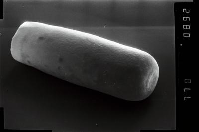 <i><i>Conochitina</i>   Conochitina aff. emmastensis</i><br />Vängla trench,  m, Adavere Stage ( 754-1946)