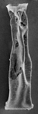<i><i>Euconochitina electa</i></i><br />Ventspils D-3 borehole, 867.00 m, Raikküla Stage ( 272-88)