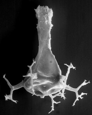 <i><i>Chitinozoa</i> | Ancyrochitina sp. D Nestor, 1990</i><br />Ikla borehole, 472.60 m, Raikküla Stage ( 189-6)