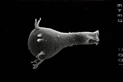 <i><i>Ancyrochitina</i> | Ancyrochitina aff. convexa</i><br />Staicele 4 borehole, 368.00 m, Raikküla Stage ( 754-1092)
