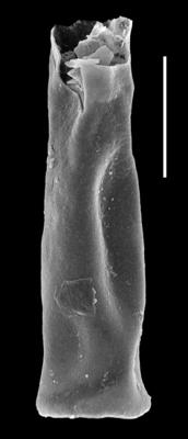 <i><i>Chitinozoa</i> | Conochitina cf. elongata Taugourdeau, 1963</i><br />Paatsalu 527 borehole, 111.50 m, Llandovery ( 493-8)