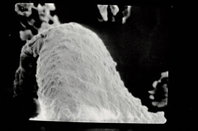 <i><i>Sphaerochitina</i> | Sphaerochitina sp.</i><br />Pavilosta 51 borehole, 526.50 m, Kaugatuma Stage ( 754-613)