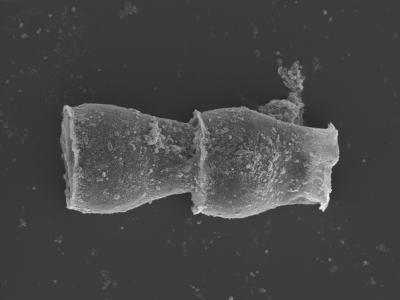 <i><i>Cingulochitina gorstyensis</i> | Cingulochitina gorstyensis?</i><br />Kolka 54 borehole, 476.00 m, Jaagarahu Stage ( 754-454)