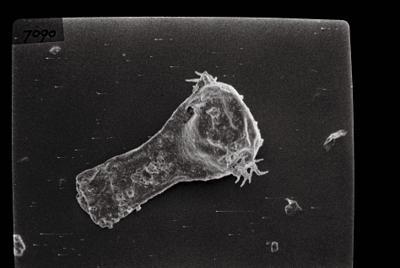 <i><i>Ancyrochitina tomentosa</i> | Ancyrochitina cf. tomentosa</i><br />Ikla borehole, 499.00 m, Juuru Stage ( 754-145)