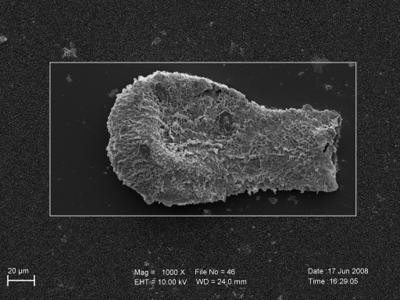 <i><i>Sphaerochitina</i> | Sphaerochitina cf.spinipes</i><br />Pavilosta 51 borehole, 796.00 m, Paadla Stage ( 754-251)