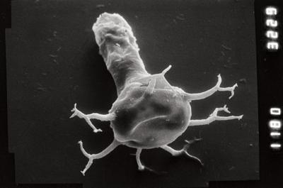 <i><i>Ancyrochitina longispina</i></i><br />Taagepera borehole, 401.50 m, Juuru Stage ( 754-901)