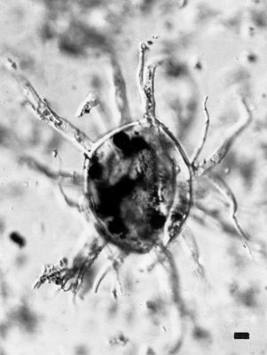 Baltisphaeridium ramiferum Uutela et Tynni, 1991, GIT 344-51