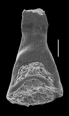 <i><i>Cyathochitina campanulaeformis</i> | </i><br />Grötlingbo 1 borehole, Gotland, 395.75 m, Juuru Stage ( 688-24)