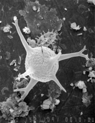 Cheleutochroa elegans Uutela et Tynni, 1991, GIT 344-72