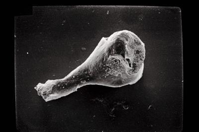 <i><i>Ancyrochitina gutnica</i></i><br />Ohesaare borehole, 266.50 m, Jaagarahu Stage ( 754-499)