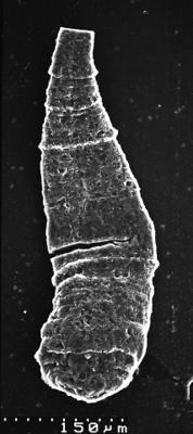 <i><i>Chitinozoa</i> | Kitiiniku laadne mikrofosiil</i><br />Varangu stratotype outcrop,  m, Tremadocian ( 1537-5)