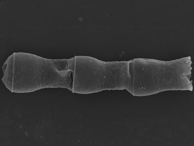 <i><i>Cingulochitina cingulata</i></i><br />Kolka 54 borehole, 462.20 m, Jaagarahu Stage ( 754-1237)