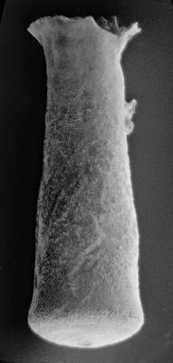 <i><i>Conochitina cribrosa</i></i><br />Ikla borehole, 185.50 m, Jaagarahu Stage ( 217-4)