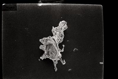 <i><i>Ancyrochitina ancyrea</i></i><br />Ruhnu 500 borehole, 417.50 m, Jaani Stage ( 754-118)