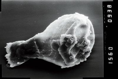 <i><i>Plectochitina</i>   Plectochitina cf. spongiosa</i><br />Nurme puurauk, 104.10 m, Juuru Stage ( 754-1025)