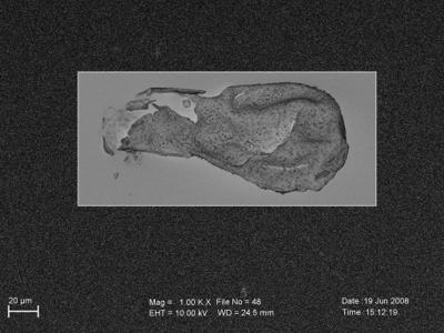 <i><i>Angochitina echinata</i> | Angochitina aff. echinata</i><br />Ohesaare borehole, 117.50 m, Paadla Stage ( 754-264)