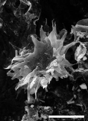 Micrhystridium inconspicum aremoricanum Paris et Deunff, 1970, GIT 344-186