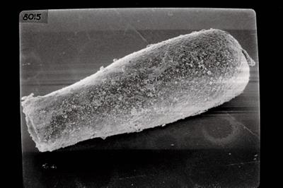 <i><i>Conochitina postrobusta</i></i><br />Laeva 10 borehole, 105.90 m, Juuru Stage ( 754-494)