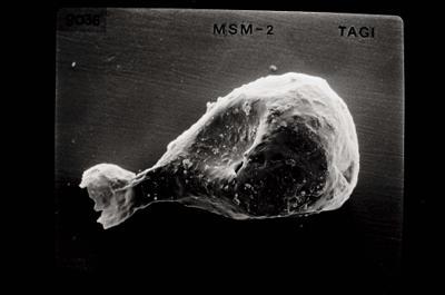 <i><i>Angochitina longicollis</i> | Angochitina cf. longicollis</i><br />Stroinaya River, Severnaya Zemlya, October Revolution Island,  m, Llandovery ( 754-815)