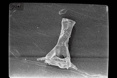 <i><i>Clathrochitina clathrata</i></i><br />Ruhnu 500 borehole, 392.80 m, Jaagarahu Stage ( 754-673)
