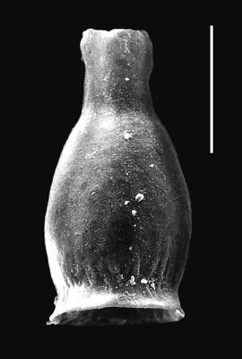 <i><i>Armoricochitina granulifera</i></i><br />Piilsi 729 borehole, 117.75 m, Haljala Stage ( 664-3)
