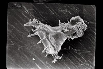 <i><i>Ancyrochitina</i>   Ancyrochitina sp. sp.</i><br />Ruhnu 500 borehole, 361.90 m, Jaagarahu Stage ( 754-696)