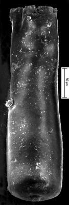 <i><i>Conochitina tuba</i></i><br />Staicele 4 borehole, 274.50 m, Jaani Stage ( 350-17)