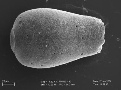 <i><i>Eisenackitina oviformis</i> | Eisenackitina oviformis?</i><br />Pavilosta 51 borehole, 622.40 m, Kuressaare Stage ( 754-239)