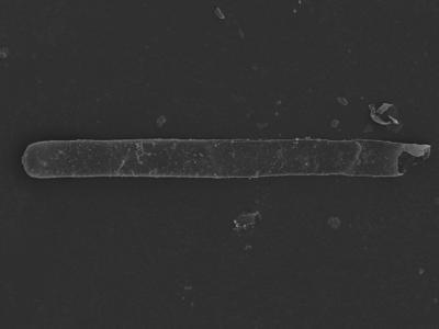 <i><i>Rhabdochitina</i> | Rhabdochitina sp.</i><br />Kolka 54 borehole, 514.00 m, Jaagarahu Stage ( 754-1245)